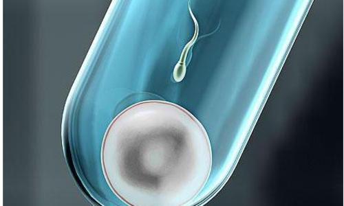男性出现什么情况需要做染色体检查